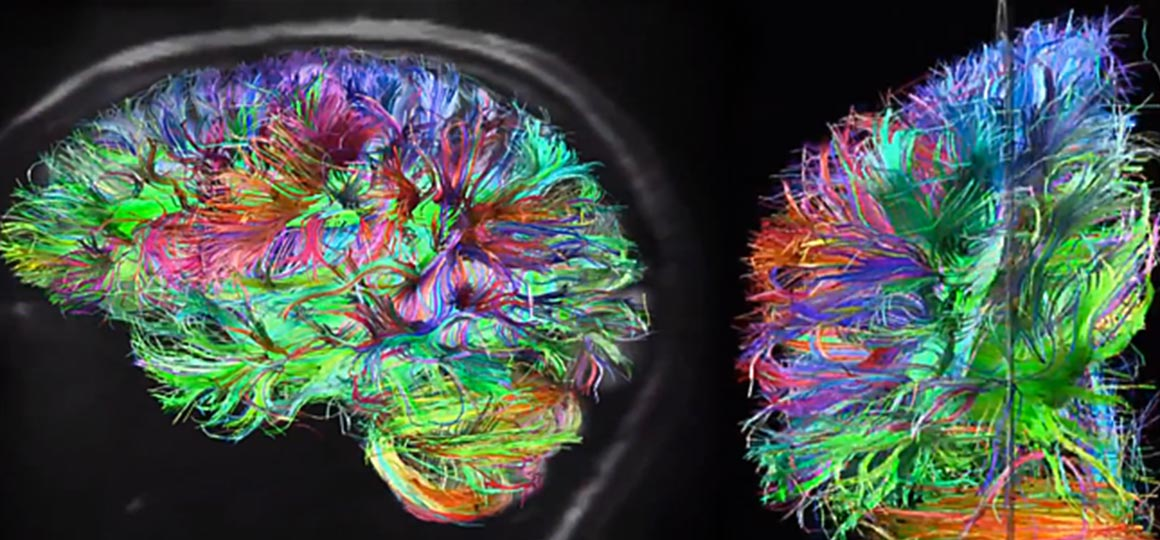 clarity, brain scan image, neuroscience, karl deisseroth, stanford university